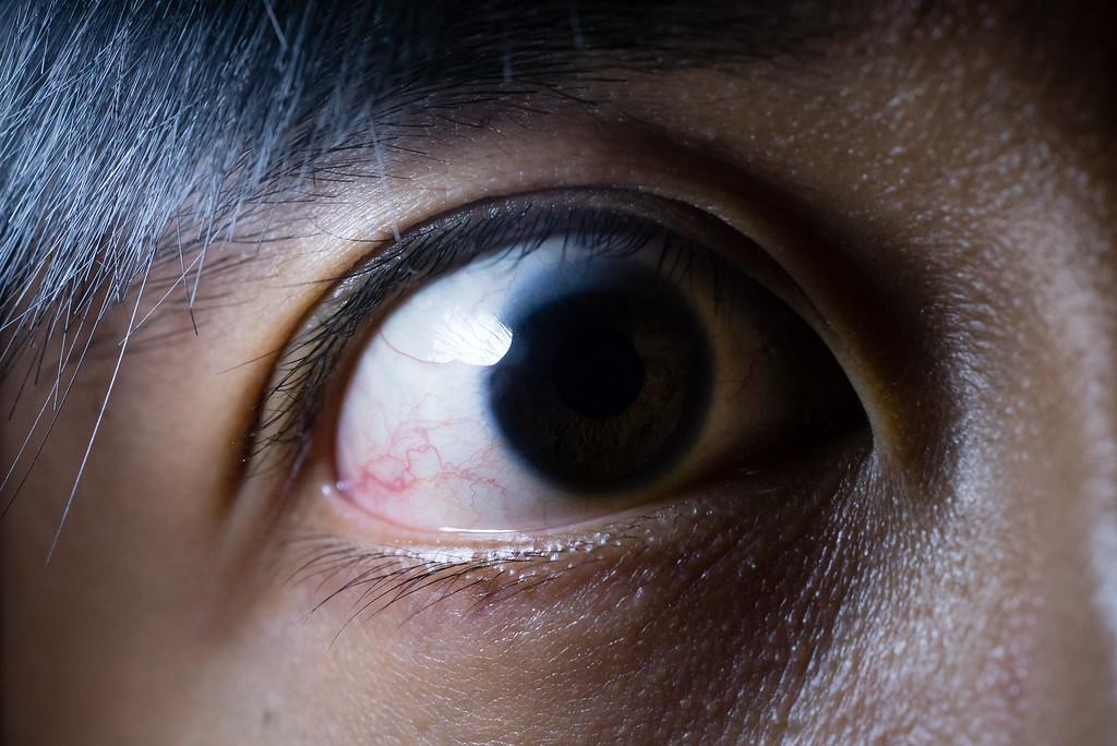 MDO_eye-XL.jpg
